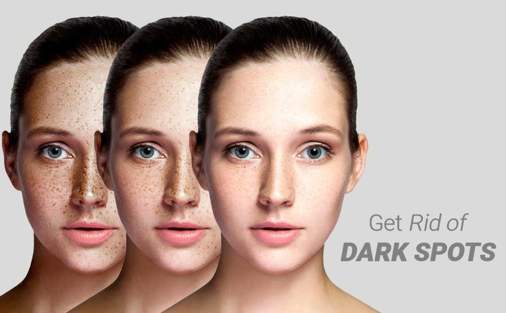 DARK SPOT TREATMENTS THAT REALLY WORK (1)