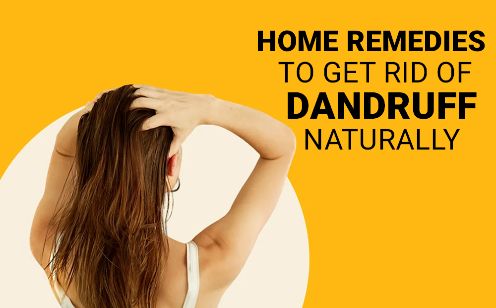 HOME-REMEDIES-TO-GET-RID-OF-DANDRUFF-NATURALLY (1)