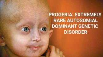 PROGERIA-EXTREMELY-RARE-AUTOSOMIAL-DOMINANT-GENETIC-DISORDER